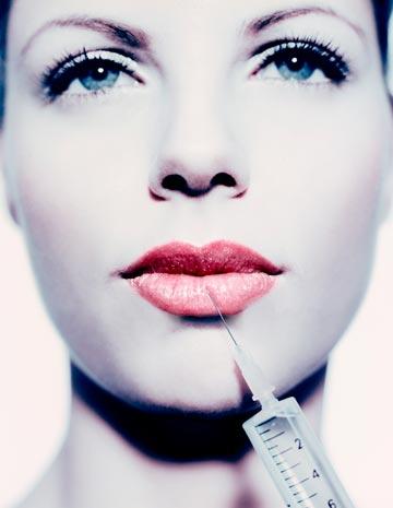 Botox la Velvet Dental