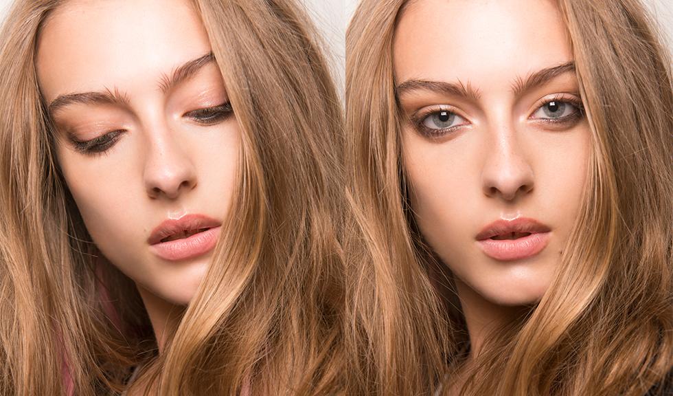 Ce trebuie sa stii despre injectiile de marire a buzelor