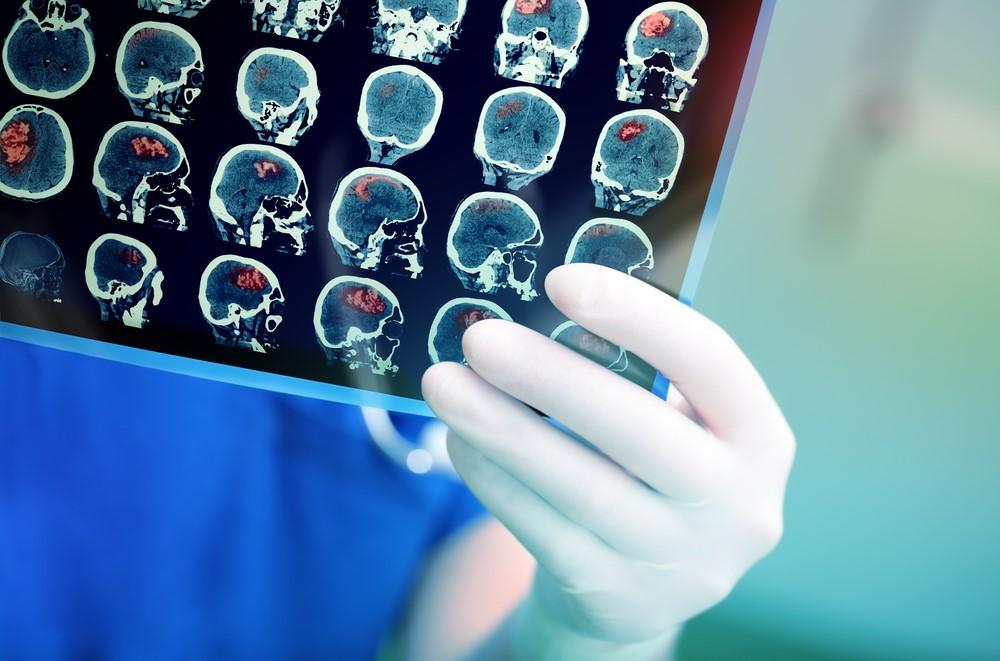 (P) Tot ce trebuie să știi despre accidentul vascular cerebral ischemic