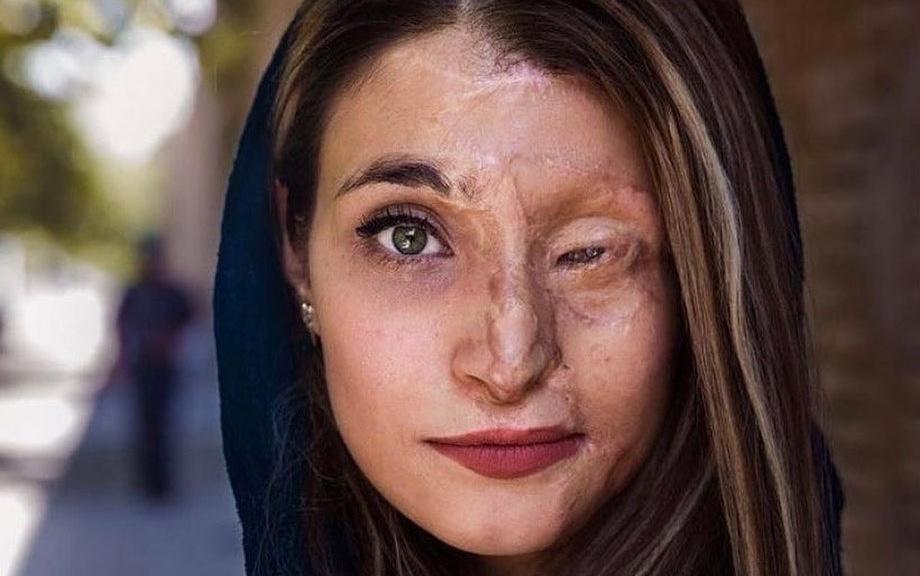 Marziyeh Ebrahimi și drumul de la victimă la luptătoare