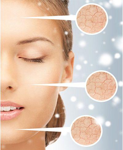 (P) Cum îți protejezi pielea în această iarnă, cu ingrediente de origine naturală. Descoperă crema de zi protectoare din colecția Nordica