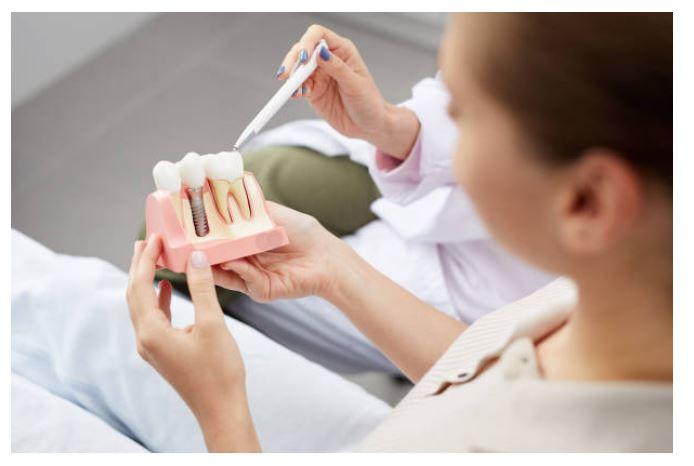 (P) Nu te teme de implantul dentar: mergi la o consultație la Smile Ambassador și scapă de frică!