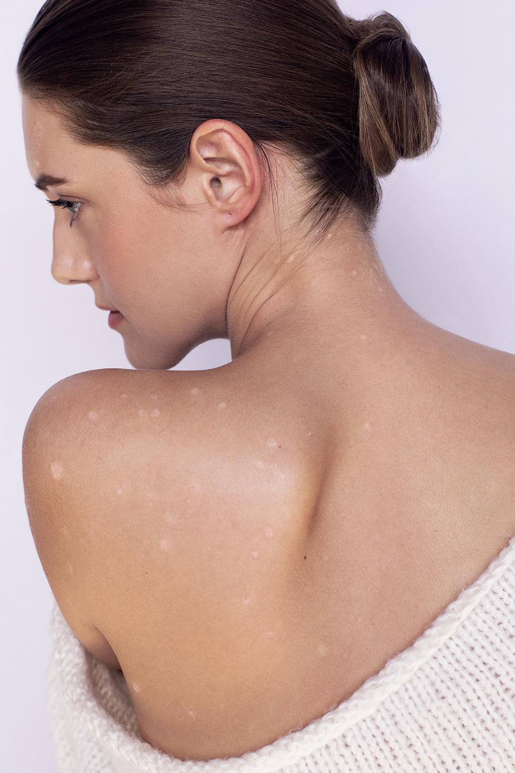 Psoriazis – mai mult decât o boală de piele